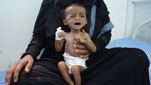 وقف مؤقت للعمليات العسكرية في مدينة الحديدة اليمنية لأسباب إنسانية