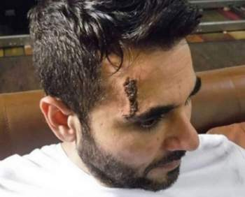 أحمد عز يتعرض لإصابة في رأسه